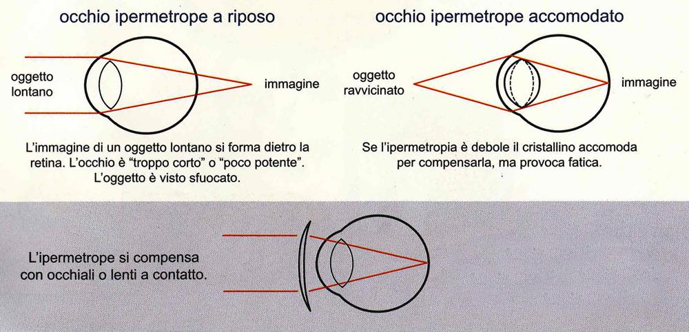 ipermetrope