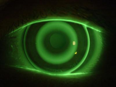 ESA per miopia